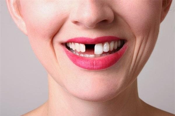 rụng răng là điềm gì